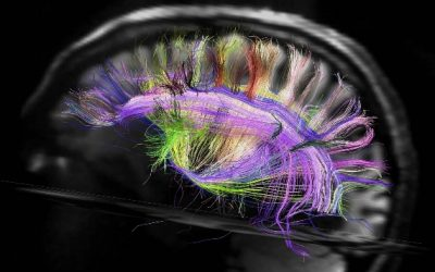 Research Links Brain Inflammation to CTE