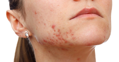 Image result for chronic acne