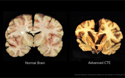 Brain Damage Found in 99% of NFL Players' Donated Brains: What More Do We Need to Know?: